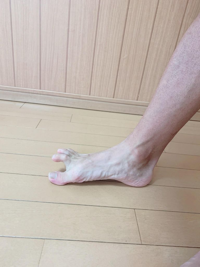 親指 つる の 足 が